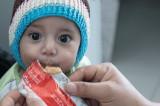 Više od 400.000 dece u Jemenu u opasnost od umiranja od gladi