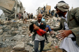 UN: Od 2015. u Jemenu ubijeno i ranjeno 18.000 civila u vazdušnim napadima
