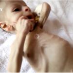 Deca su glavne žrtve imperijalističkog rata u Jemenu
