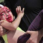 Upucali curicu u lice bez razloga (Video)