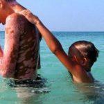 Kuba leči decu žrtve černobiljske katastrofe