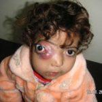 Košmarni defekti novorođenčadi u Iraku