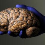 Naučnici potvrđuju da mozak i dalje radi nakon smrti!